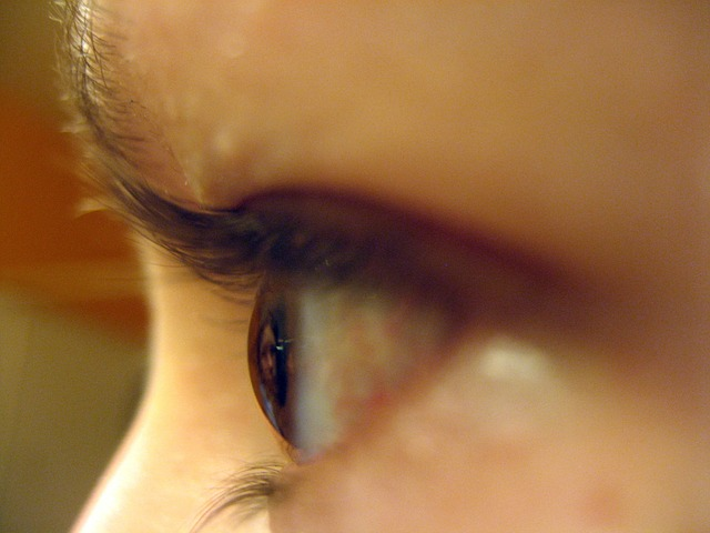 Das menschliche Augenlid - Aufbau, Funktionen, Symptome