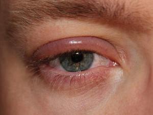 Blepharitis Augenlider