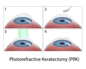 PRK Ablauf Augenlaser