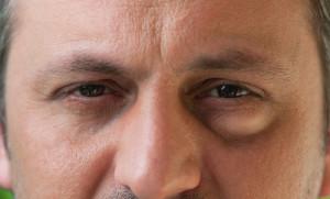 Mann mit geschwollenen Augenlidern