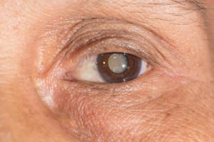 Linsentrübung im Auge führt zu einem Katarakt