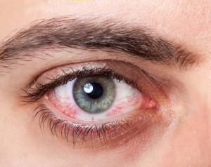 Auge mit geplatzter Ader